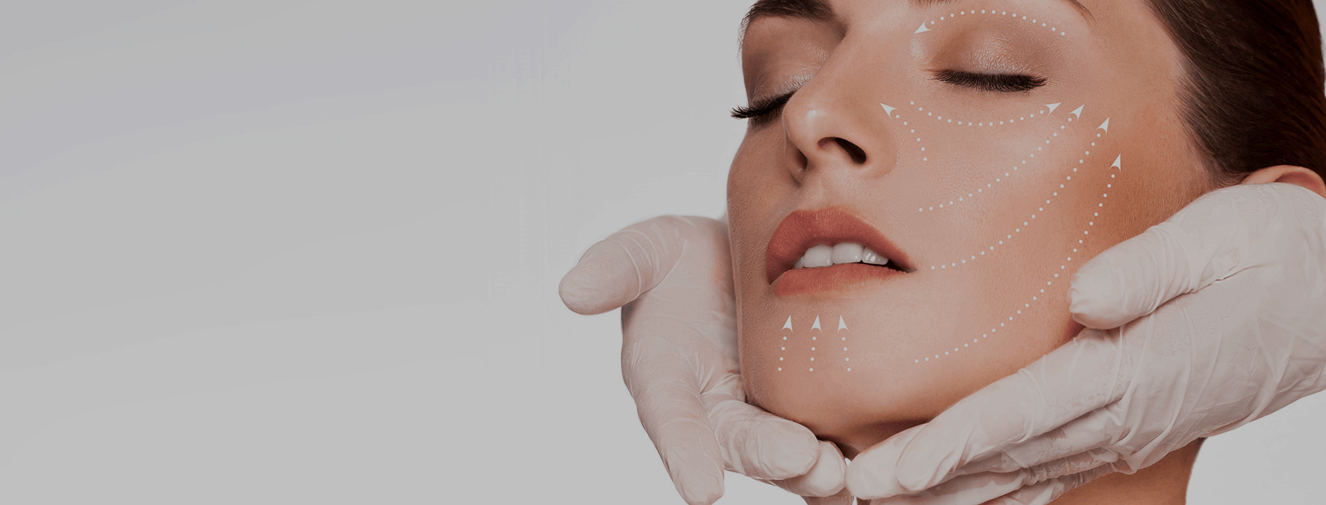 Botox and Juvederm Treatment
