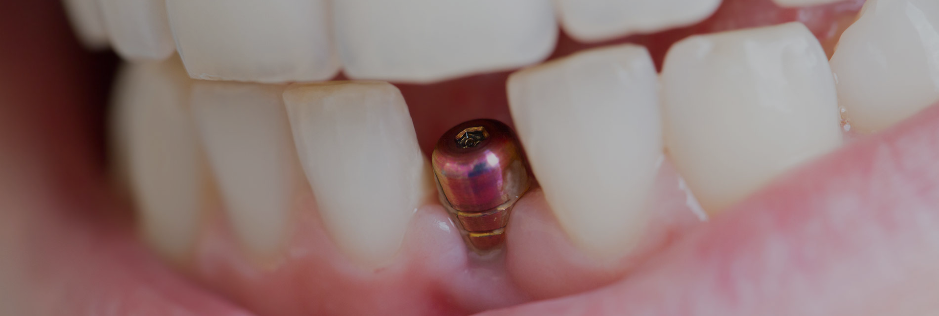 Dental Implants Page