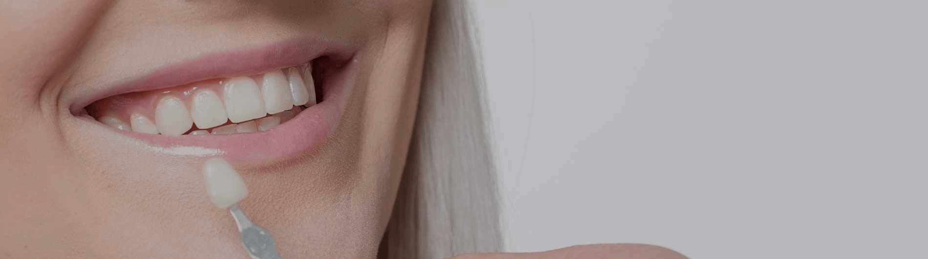 Dental Veneer Slider Image