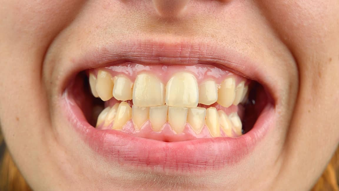 Laser Frenectomy Helping Gum Recession