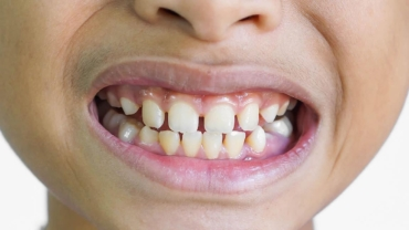 Laser Frenectomy Helping Prevent Potential Crowding