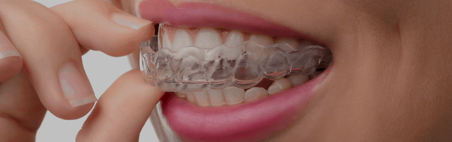 Orthodontics Clear Aligners over Braces