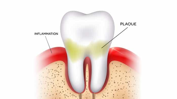 Stage One Gum Disease