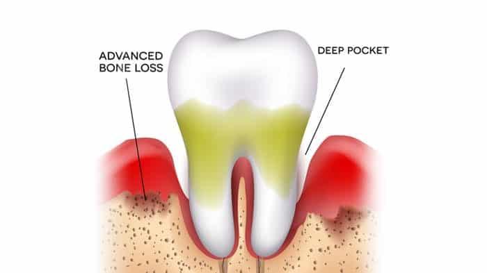 Stage Three Gum Disease