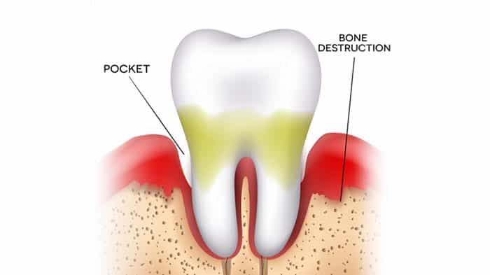 Stage Two Gum Disease