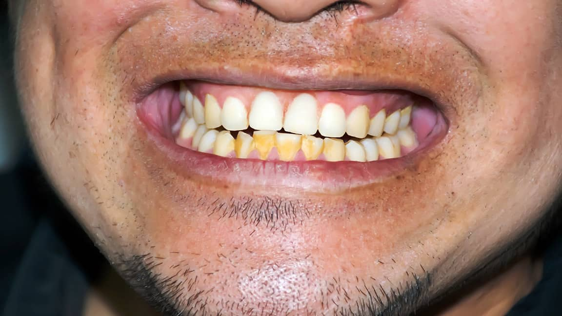 Sudden Discoloration of the Tooth