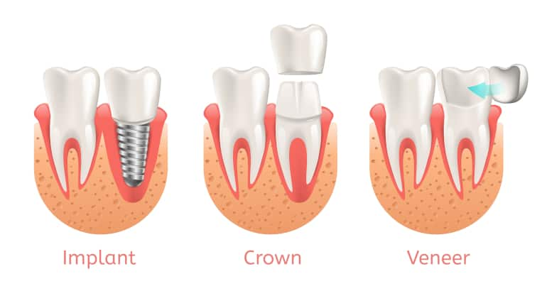 Dental Implants Crowns Veneers