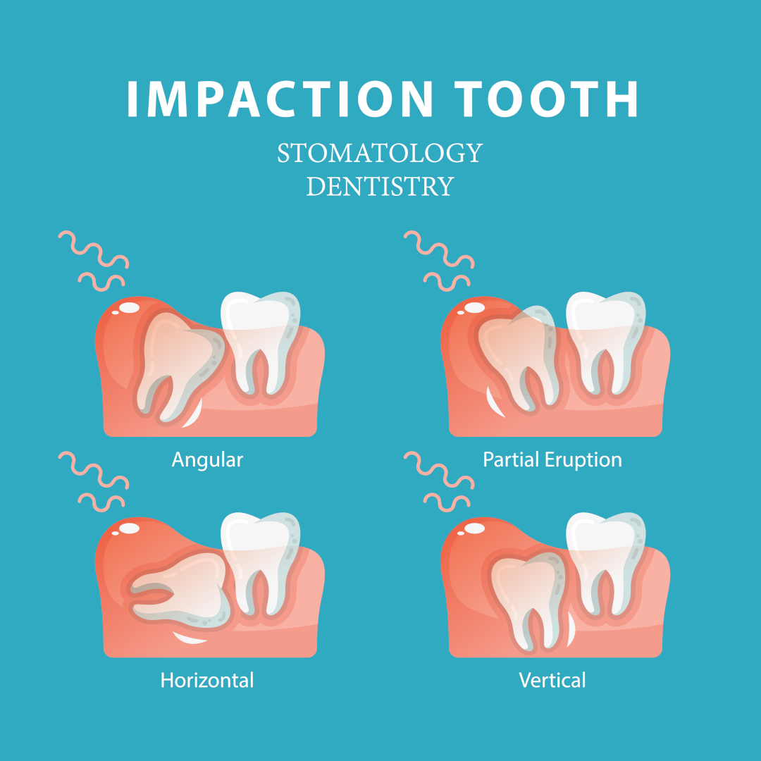 Impacted Wisdom Teeth Pain