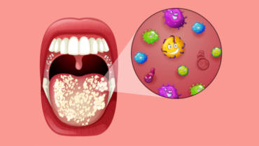 Can Oral Probiotics Prevent and Help Treat Gum Disease?