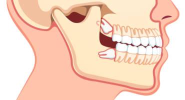 3 Warning Signs of Impacted Wisdom Teeth