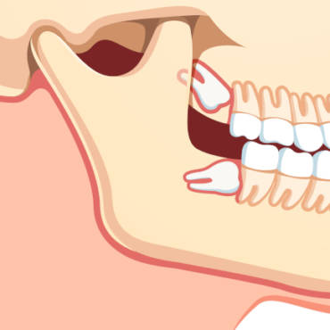 3 Warning Signs of Impacted Wisdom Teeth