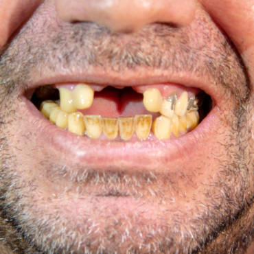 Can Proper Oral Care Help Recovering Drug Addicts?
