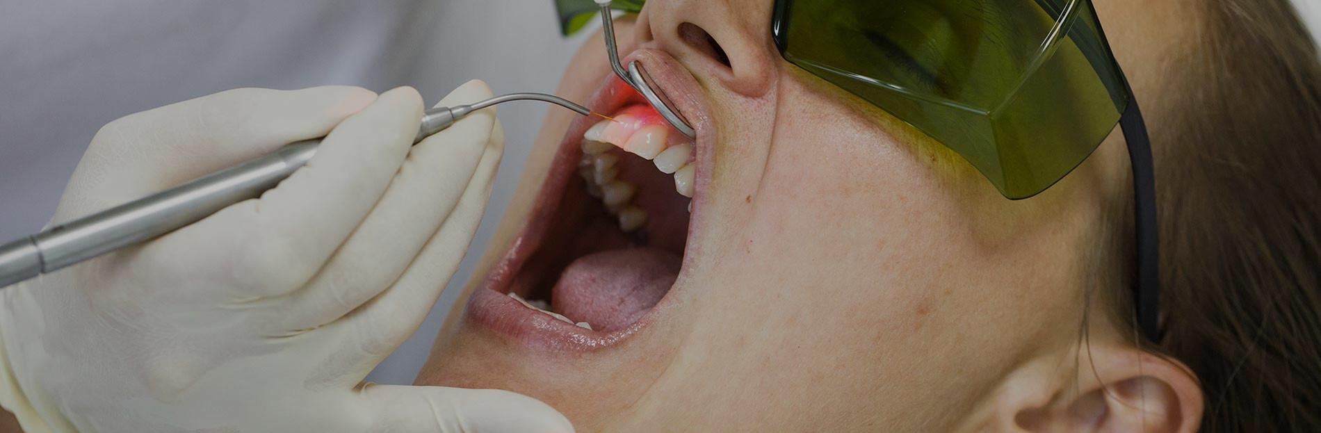 Laser Dentistry Minimally Invasive Procedure