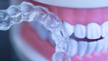 Orthodontics Materials, Clear aligners