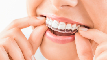 Remove Braces to Clean Your Teeth