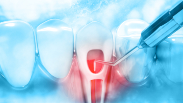 Laser Dentistry in Endodontic Treatments, Is it Safe for You?