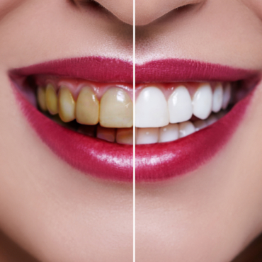 Cosmetic Dental Procedures that Help Better Your Lifestyle