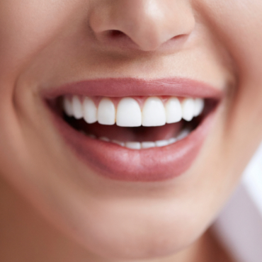 The Evolution of Aesthetic Dentistry
