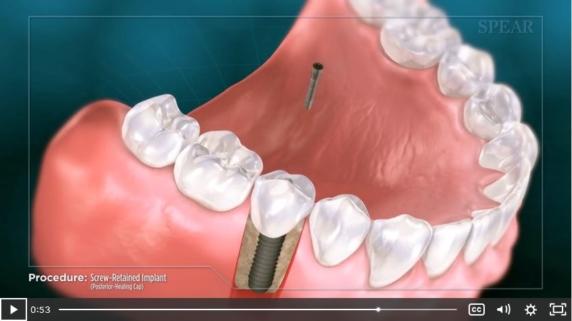 dental implant procedure video