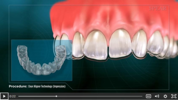 Orthodontics procedure video