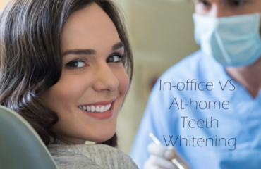 In-Office vs At-Home Teeth Whitening