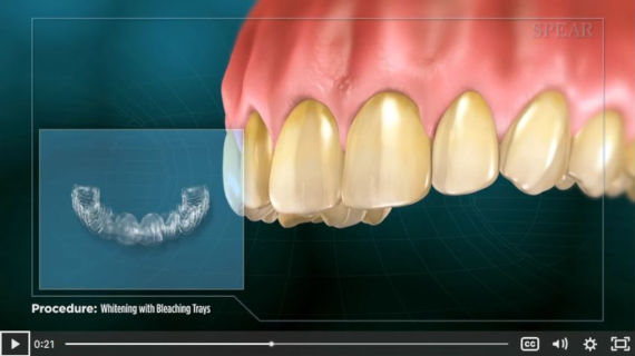 Teeth Whitening Patient Educational Video