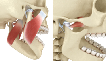 How TMJ Injections Can Help You Get Rid of Jaw Pain