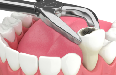 Tooth Extraction and Post Recovery