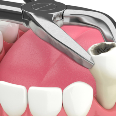 Can I Smoke or Drink After A Tooth Extraction?