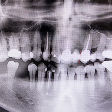 Bone Grafting and Alternative Solutions
