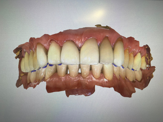 Digital Image for Crown Treatment